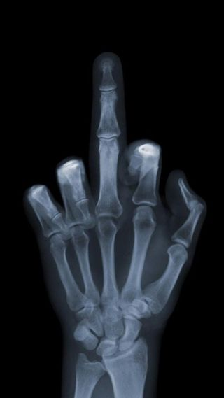 Обои на телефон палец, луч, кости, x-ray